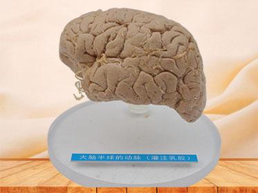 Artery of cerebral hemisphere plastinated specimen