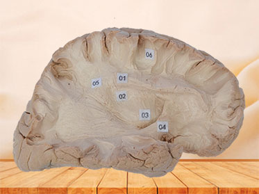 Association fibe  of cerebral hemisphere plastinated specimen