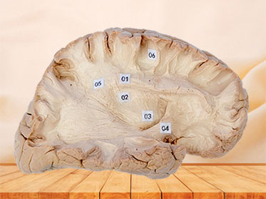 Association fiber of cerebral hemisphere plastination