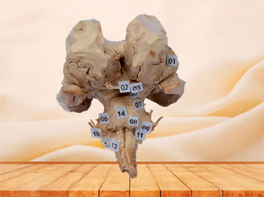 Brain stem plastinated specimen