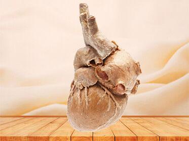 Cardiovascular anatomy specimen