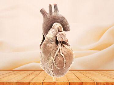 Cardiovascular human anatomy specimen