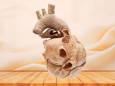 Cardiovascular plastianted specimen