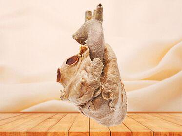 Cardiovascular specimen