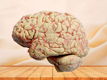 Cerebral hemisphere and brain plastinated specimen