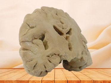 Coronal section of brain plastinated specimen