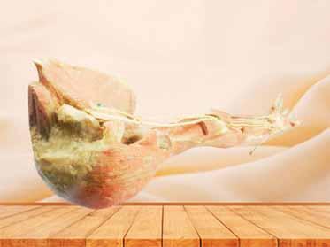 Deep arteries  of upper limb teaching specimen