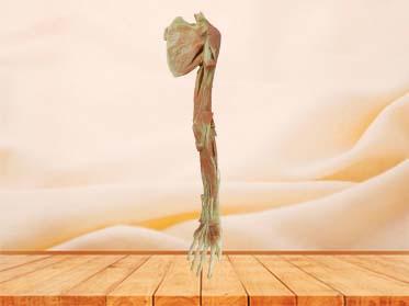 Deep muscle of upper limb plastination