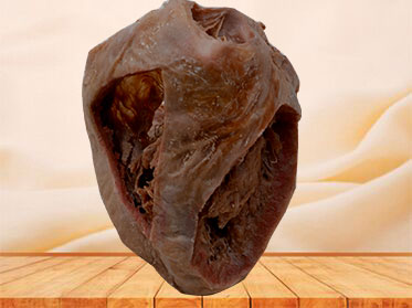Heart(Heart specimen with ventricles opened to expose the valves)plastination specimen