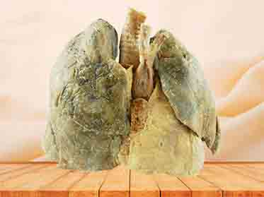 Heart and 2 lungs plastinated specimen