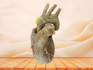 Heart with coronary vessels for sale