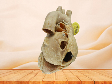 Heart with coronary vessels specimen for sale
