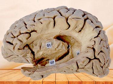 Hippocampal formation plastinated specimen