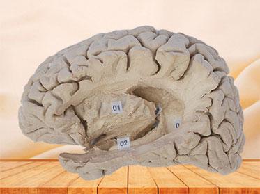 Hippocampal formation plastination