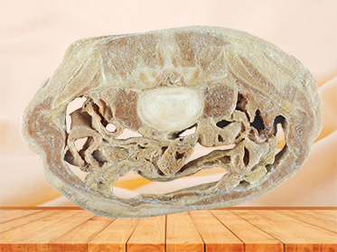 Horizontal slices of complete male body plastination
