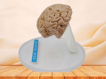 Human artery of cerebral hemisphere plastinated specimen