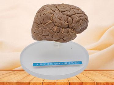 Human artery of cerebral hemisphere plastination