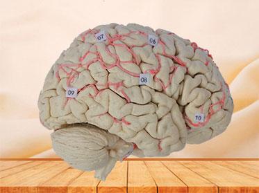Human artery of whole brain specimen plastination