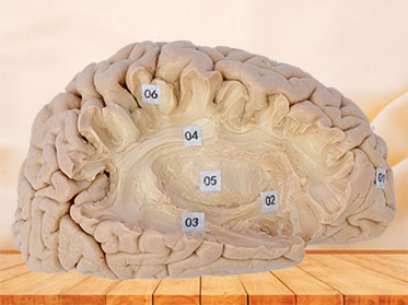 Human association fiber of cerebral hemisphere plastinated specimen