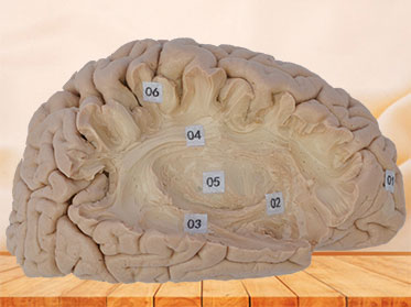 Human association fiber of cerebral hemisphere plastination