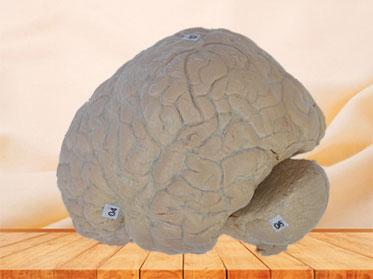 Human cerebral arachnoid mater