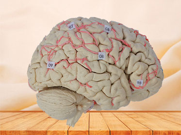 Human cerebral artery plastinated specimen