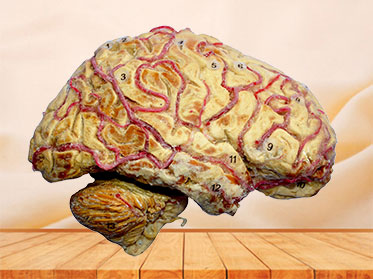 Human cerebral hemisphere and brain stem plastination