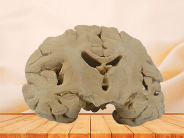 Human coronal section of brain