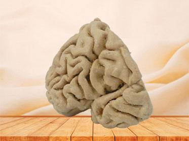 Human coronal section of brain plastinated specimen