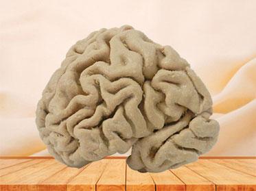 Human coronal section of brain plastination