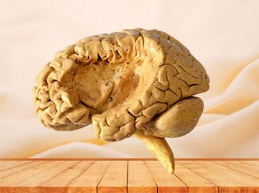 Human insular lobe