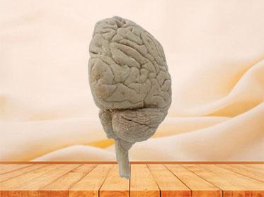 Human median sagittal section of brain plastinated specimen