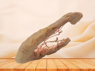 Ileum vascular arch