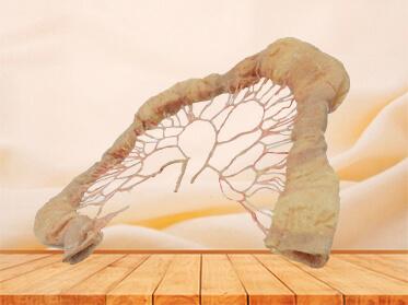 Jejunum vascular arch