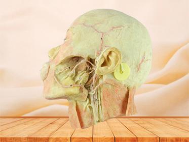 Muscles of nek and carotid medical specimen