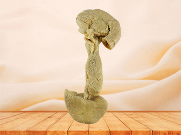 Pancreas duodenum and spleen specimen for sale