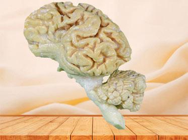 Pig brain hemisphere