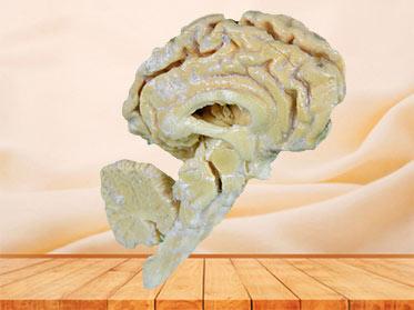 Pig brain hemisphere plastinated specimen