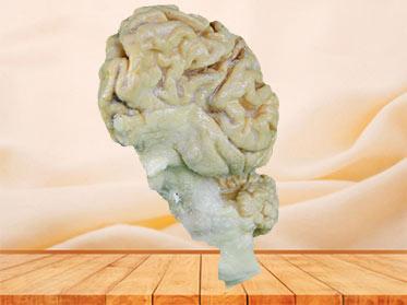 Pig brain hemisphere plastination