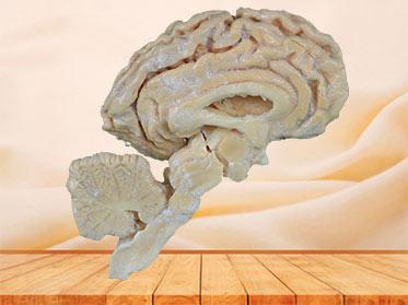 Pig brain hemisphere plastination specimen