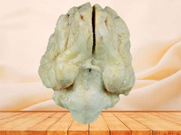 Pig brain plastination