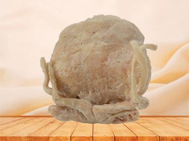 Prostate seminal vescle, bladder plastinated cadaver