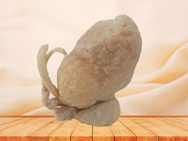 Prostate seminal vescle, bladder plastination for sale
