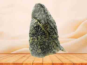 R-lung medical specimen