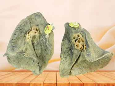 Root of the lung medical plastination