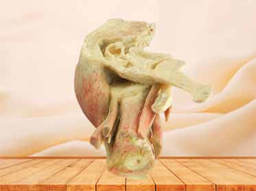 Sagittal section of male pelvic plastinized cadavers