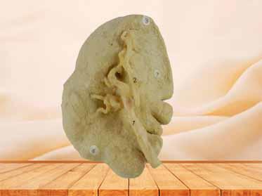 Spleen medical specimen