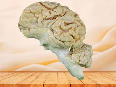 The anatomy of pig brain hemisphere