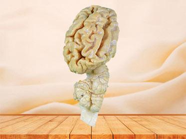 The anatomy of pig brain hemisphere plastinated specimen