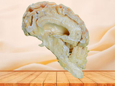 The brain hemisphere of dog plastinated specimen